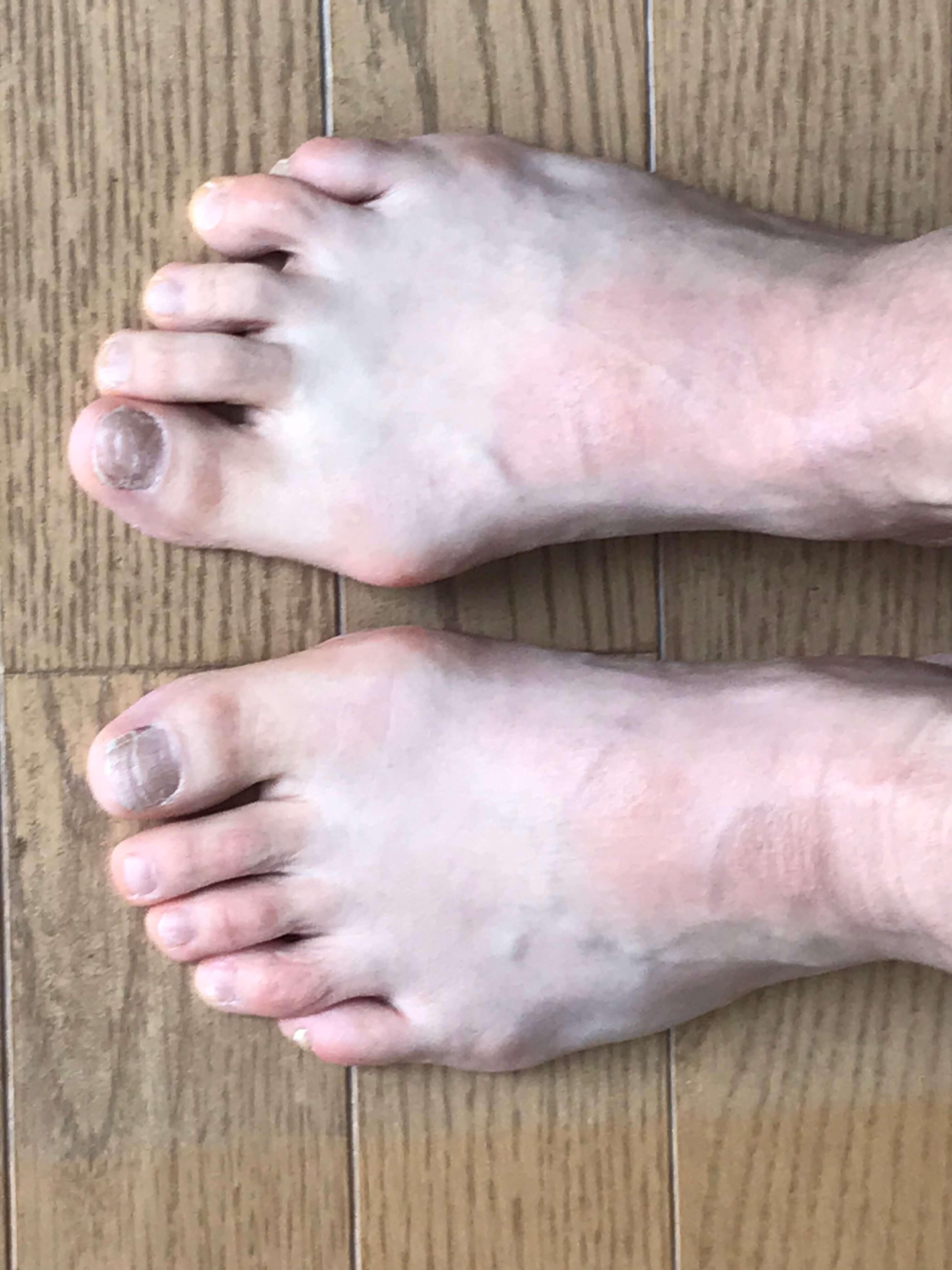 足の指を使えていますか? その1